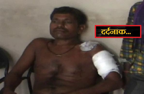 फतेहपुर: दलित ने बेगारी करने से किया मना, तो काट दी हाथों की उंगलियां