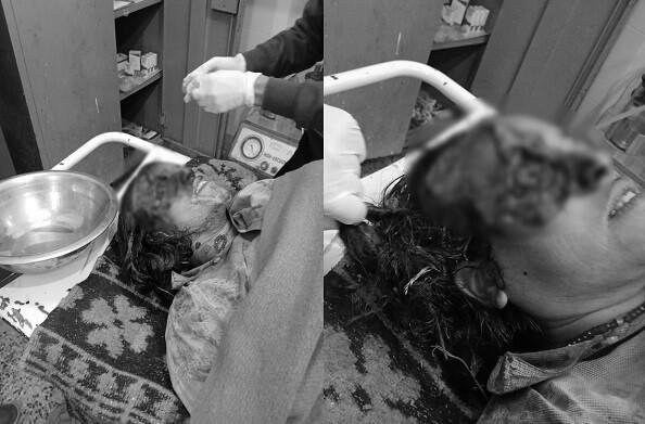 भालू ने महिला का चेहरा बुरी तरह नोचा, दिल दहला देंगी तस्वीरें